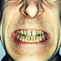 Как сберечь зубы курильщикам