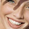 Отбеливание зубов: «за» и «против»