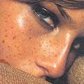 Дисхромии кожи