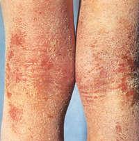Псориаз симптомы причины болезни фото признаки заболевания