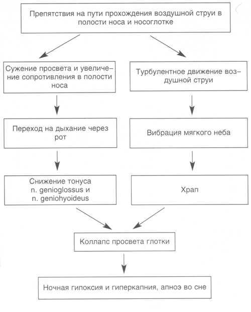 Синдром обструктивного апноэ сна и его лечение