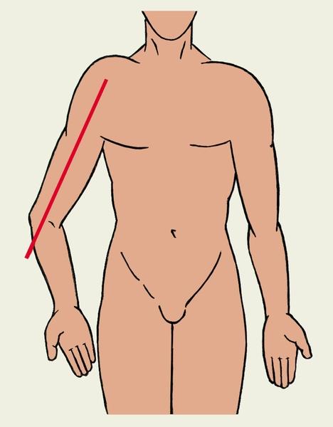 Изображение - Варусная деформация локтевого сустава встречается после normal