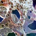 Остеопороз — бич пожилых. Как сохранить крепкие кости?