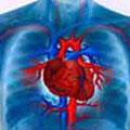Как лечить кардиогенный шок при инфаркте миокарда?